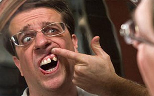 17 Y.O. Schoolie Shatters His Teeth Falling Down Kuta Nightclub Staircase