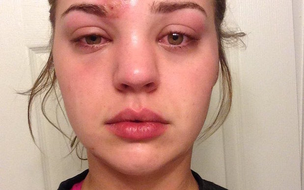 This Pimple-Popping Horror Story Will Make You Think Twice Before Picking