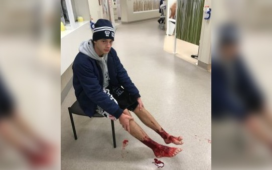 Teen Emerges From Beach With Bloodied Legs After A Quick Dip