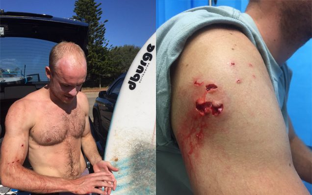 Shark Punching Brit Thanks Mick Fanning After Escaping Attack At NSW Beach