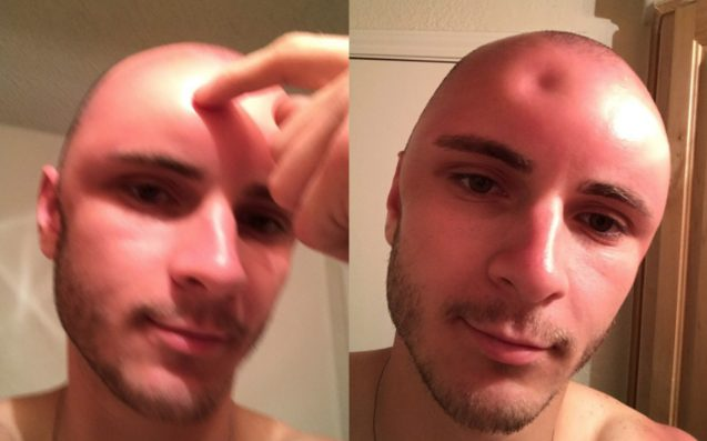 Oh My God This Dude's Bald Head Got Burnt & What The Fuck Is Happening