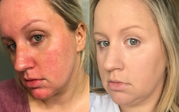 These Before / After Pics Of It Cosmetics 'Bye Bye Redness' Are Truly Wild